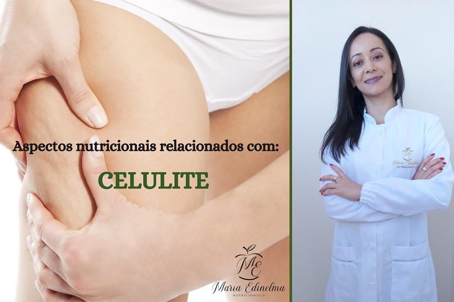 ASPECTOS NUTRICIONAIS RELACIONADOS COM: CELULITE – TEXTO: NUTRICIONISTA MARIA EDINELMA